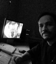 Carlos Andres Perez on Radiopaedia.org