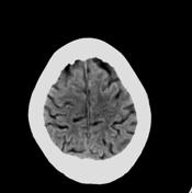 CT brain plain  B...