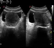 benign prostate hyperplasia radiopaedia