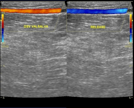 Great saphenous vein