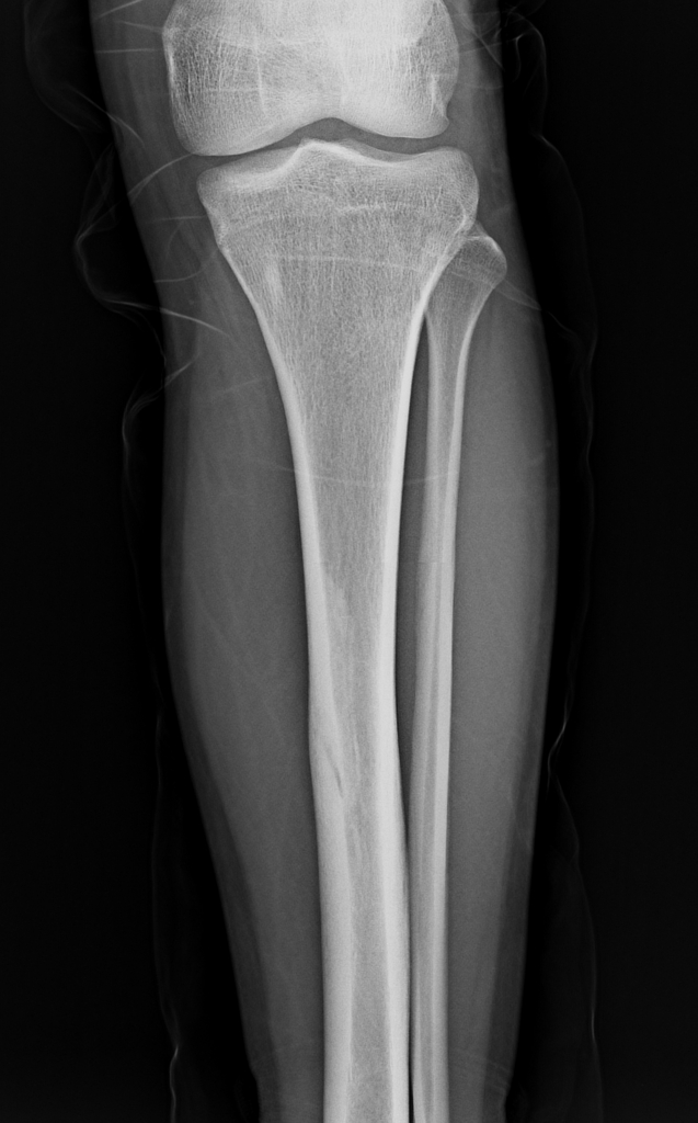 Tibial Stress Fracture Radiology Case Radiopaedia Org