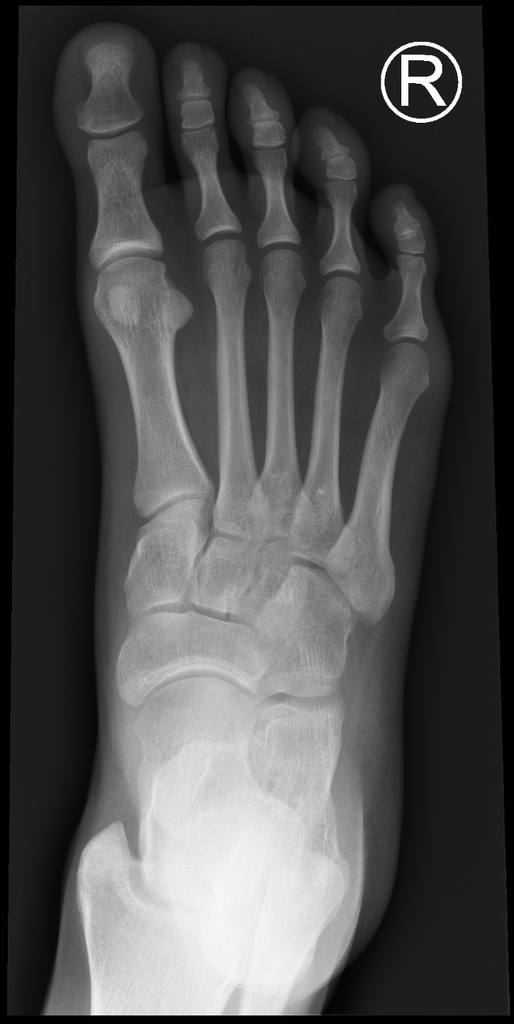 Normal Foot X Rays Radiology Case Radiopaedia Org