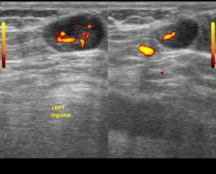 Left inguinal nodes