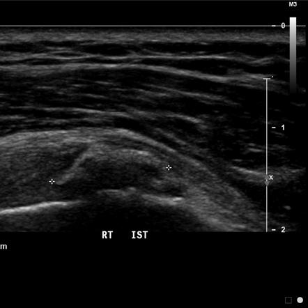Calcific tendinitis | Radiology Reference Article | Radiopaedia.org