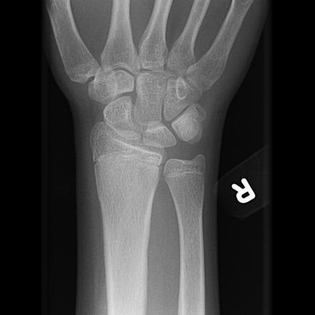 Osteomyelitis - 4...