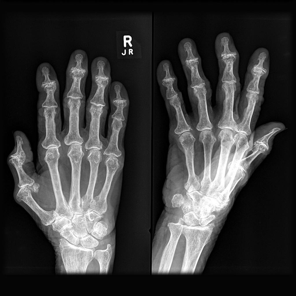 arthritis arthrosis kenőcskezelés)