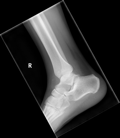 Ankle Lateral View Radiology Reference Article Radiopaedia Org