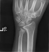 The distal radius...