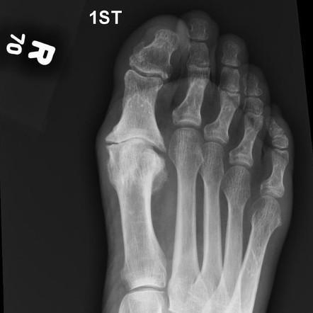 reuma fájdalom csillapítása térdízület fájdalma hajlított lábakkal