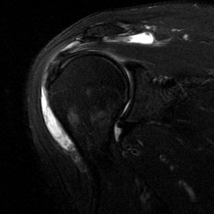 Shoulder bursitis | Radiology Case | Radiopaedia.org