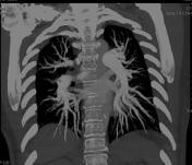 MIP CT chest demo...