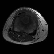 Osteomyelitis: T1