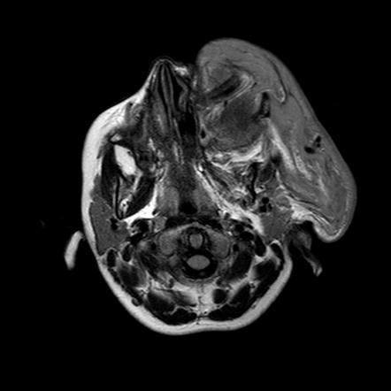 Plexiform neurofi...