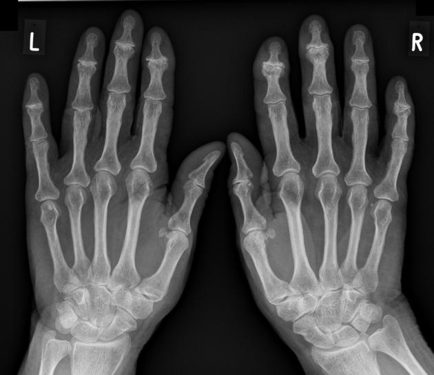 Septic Arthritis Radiology Reference Article Radiopaedia Org