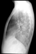 Tuberculosis  PA ...