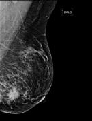 Left breast MLO v...