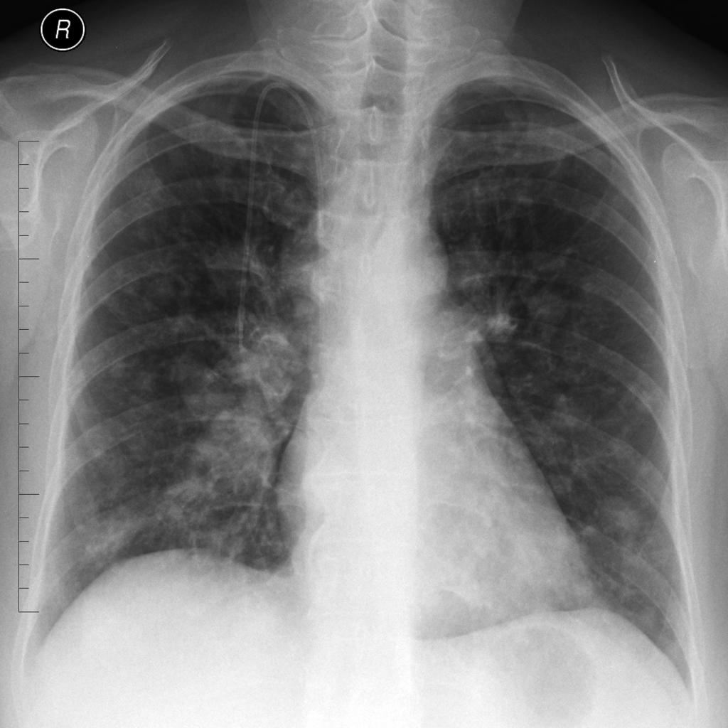 Lung Metastases From Colorectal Cancer Radiology Case Radiopaedia Org
