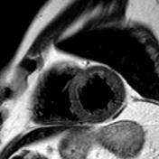 Myocardial oedema...