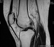 Patellar height r...