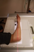 Lateral Forearm R...