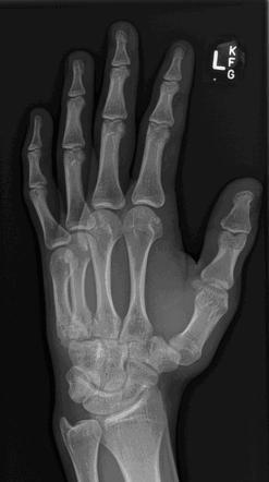 Left Hand Oblique