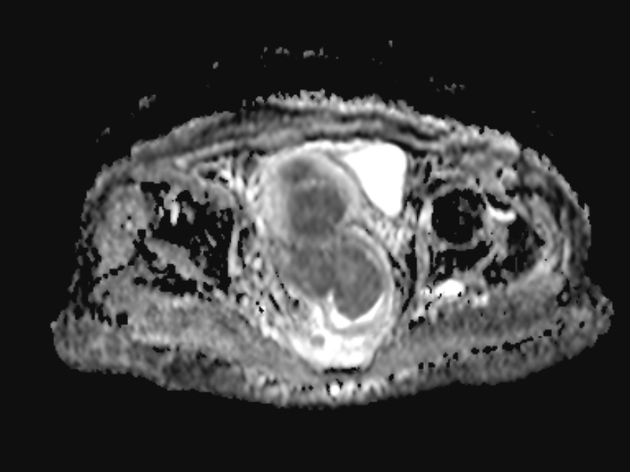 Rectal Cancer With Uterine Invasion Radiology Case Radiopaedia Org