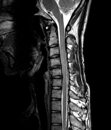 Saggital MRI in n...
