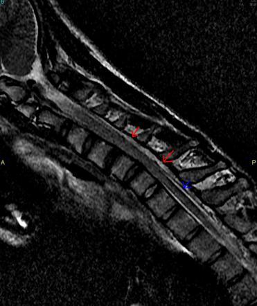 Flexion MRI revea...