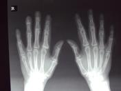 X-ray both hands ...