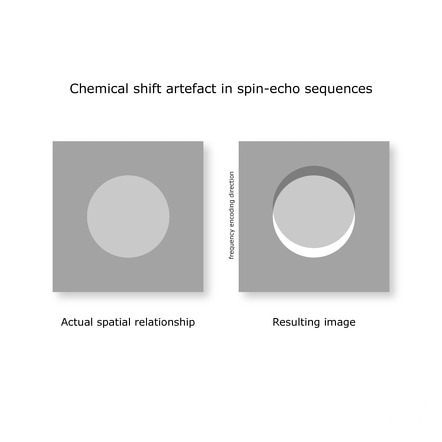 Chemical shift ar...
