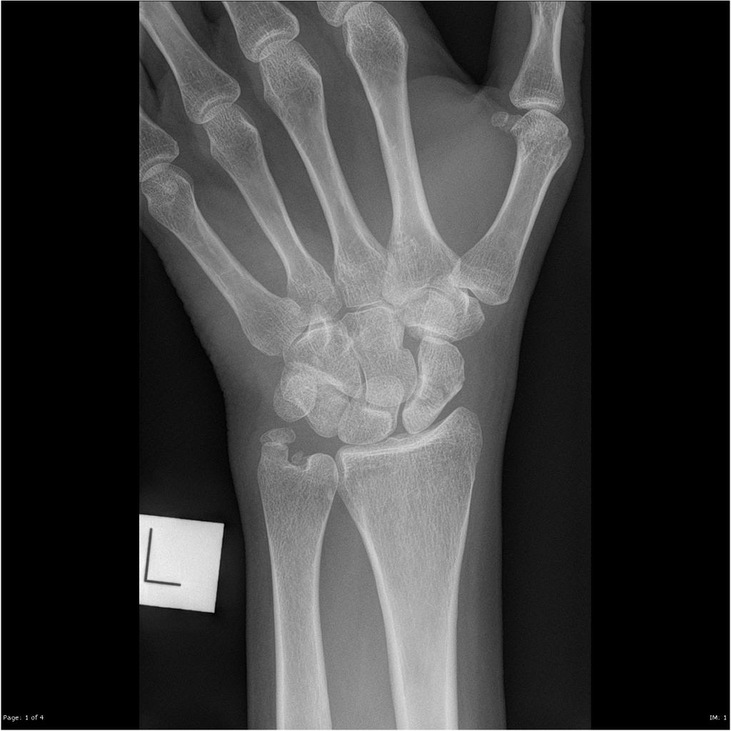 scaphoid fracture x ray)