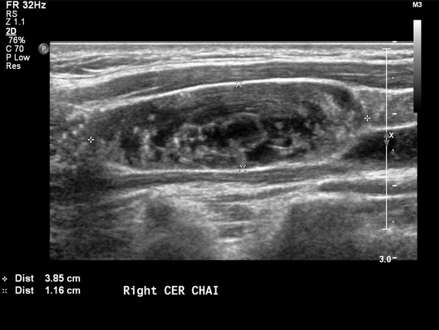 Papillary Thyroid Carcinoma With Cystic Lymphadeopathy