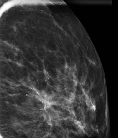 Ductal Carcinoma In Situ Radiology Reference Article