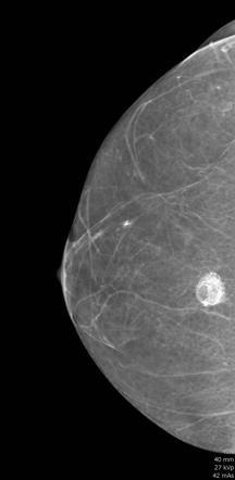 Fat Necrosis Breast Radiology Reference Article Radiopaedia Org