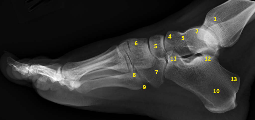 Foot Annotated Lateral Projection Radiology Case Radiopaedia Org