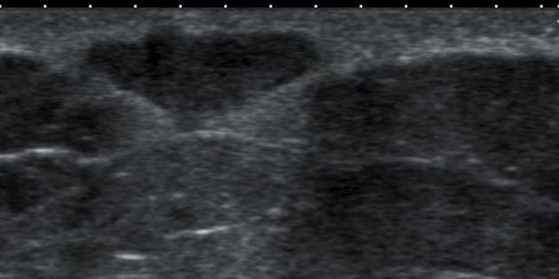 Sebaceous Cyst Breast Radiology Case Radiopaedia Org