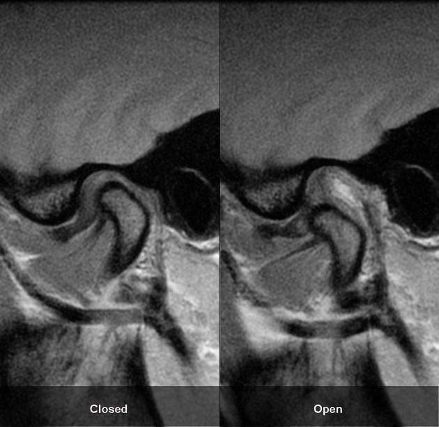 Temporomandibular Joint Fixed Anterior Dislocation Radiology