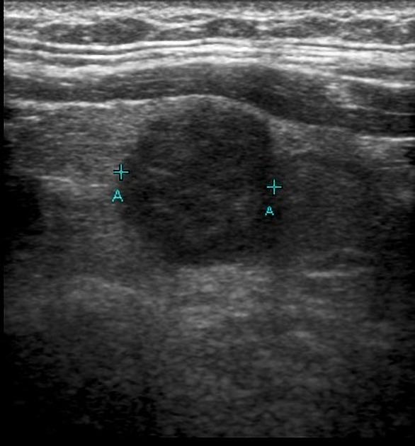 Papillary Thyroid Carcinoma Radiology Case Radiopaedia Org