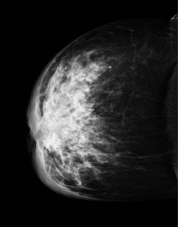 Inflammatory Carcinoma Of The Breast Radiology Reference Article