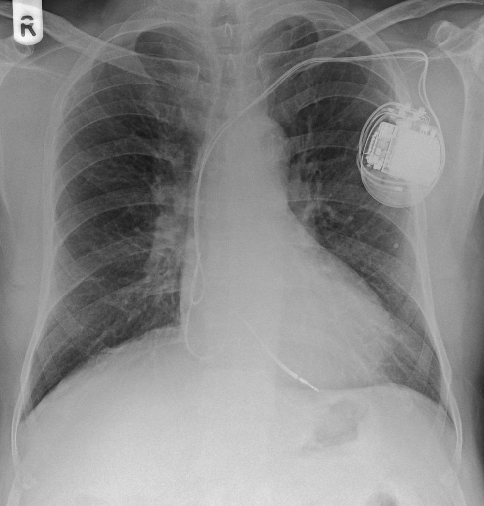 Radiology Quiz 6411 | Radiopaedia.orgViewing playlist: Devices - My EDIC  Practice | Radiopaedia.org