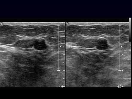 Breast Ultrasound Radiology Reference Article Radiopaedia Org