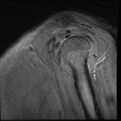 Sagittal PD image...