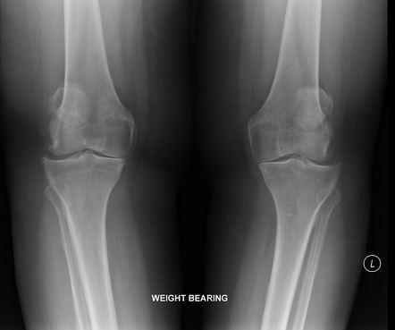 osteoarthritis radiology knee)