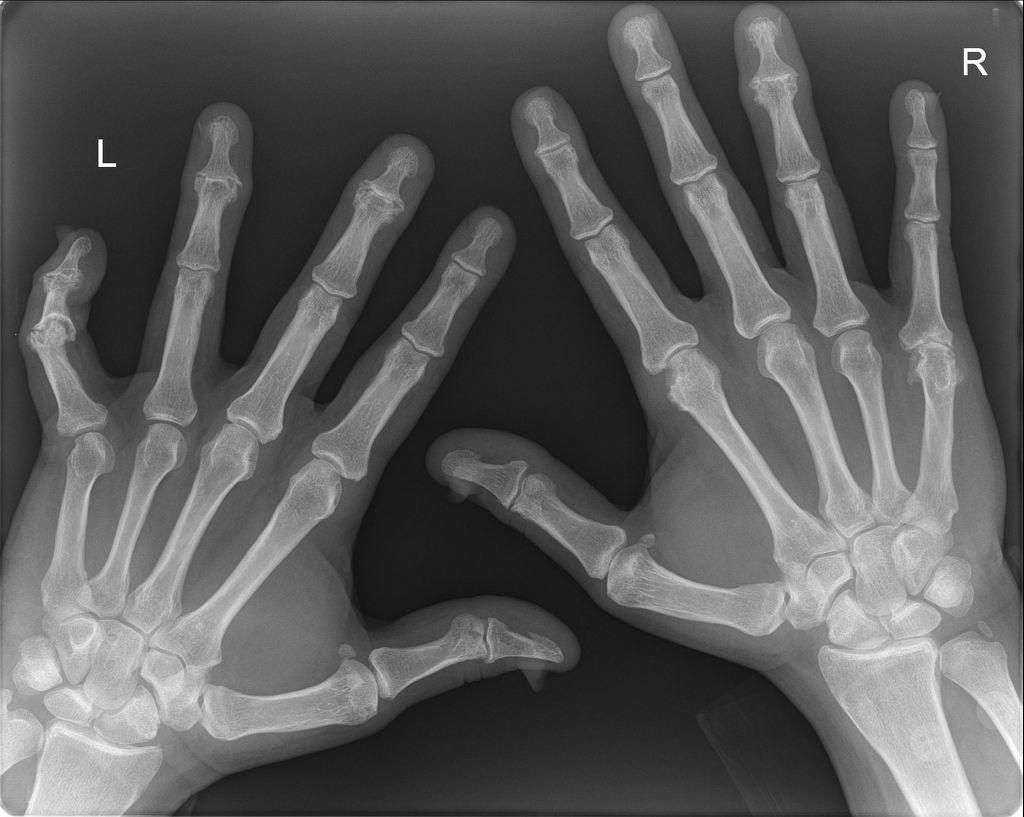 Psoriatic Arthritis Of Hands Radiology Case Radiopaedia Org