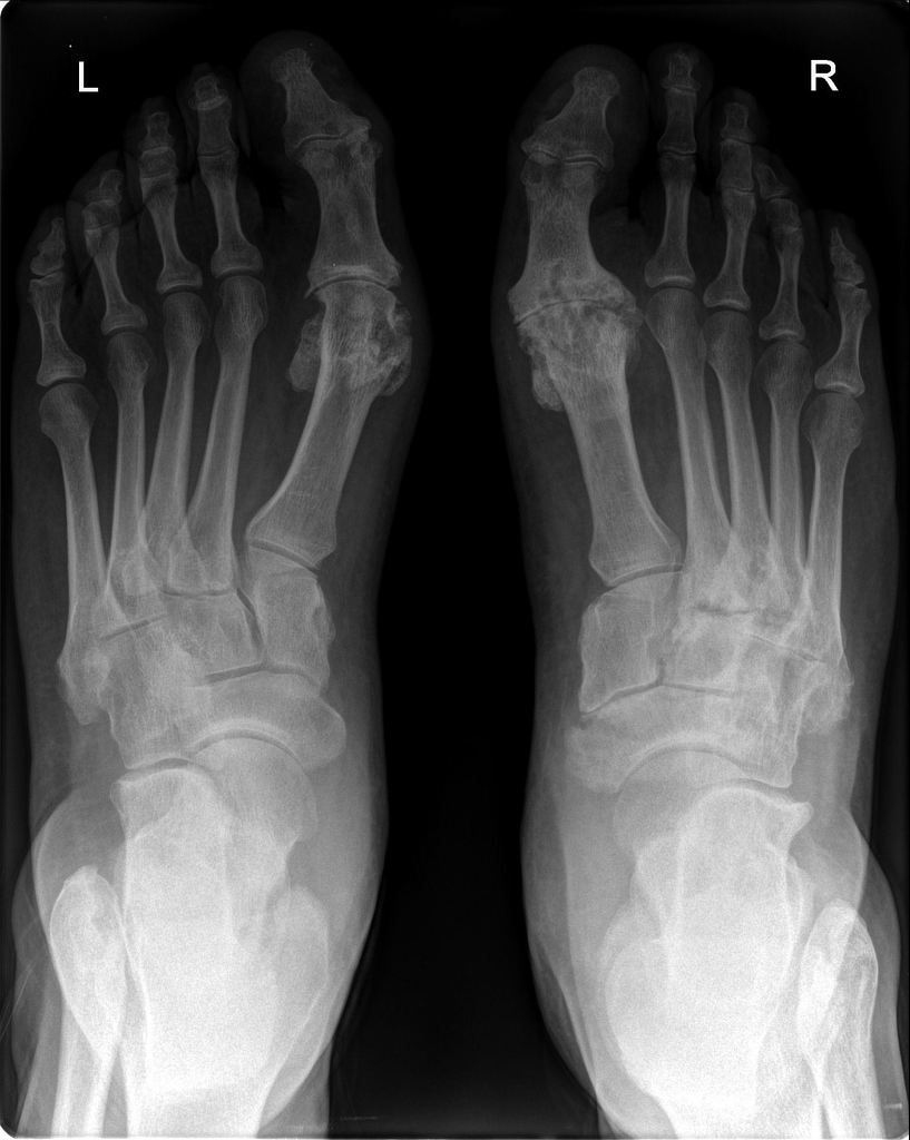 Psoriatic Arthritis Of Feet Radiology Case Radiopaedia Org