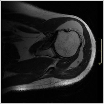 bursa subdeltoidea mri gel de încălzire a articulațiilor