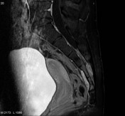 Osteoblastoma T1 ...