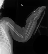 Buckle fracture o...