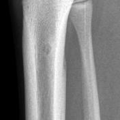 Osteoid osteoma -...