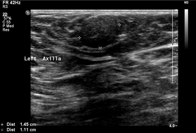 Radiology Quiz 48920 Radiopaedia Orgviewing Playlist Gd Breast